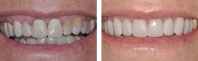 Old crowns with lots of gums showing treated by orthodontist to intrude teeth followed  by new crown restorations replacing old crowns and matching veneers on discolored natural teeth.