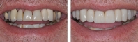 Old bridges replacing missing front teeth were treated by orthodontist to align teeth, periodontist to contour gums and place implants allowing implant crown replacement of missing teeth with matching crowns and veneers for remaining upper teeth.