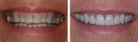 Short, discolored teeth treated by orthodontics and gum re-contouring and restored with veneers upper and lower teeth.