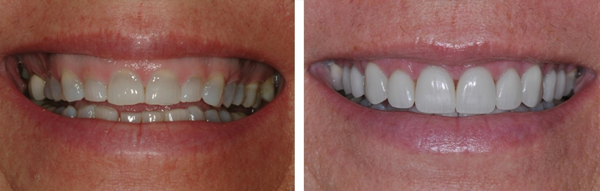 Before & After Gallery | Opalesque Dentistry