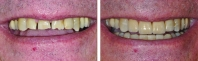 Severe tooth wear treated by orthodontics to correct bite, then worn upper teeth restored with all porcelain crowns and lower worn teeth treated with chairside veneers.