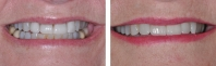 Existing broken veneers treated by orthodontics to correct bite followed by new porcelain veneers.