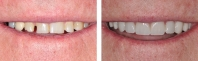 Worn, broken and short teeth treated by opening bite with porcelain restorations on all upper and lower teeth.