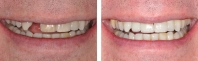 Missing tooth and discolored tooth treated by orthodontist to align bite, periodontist to place implant, endodontist to internally bleach dark tooth then an all porcelain implant crown was matched to replace the missing tooth.