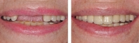 Missing front teeth treated by periodontist to place implants, then implants were restored with all porcelain crowns.