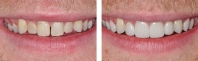 Short, discolored teeth treated by gum re-contouring then restored with all porcelain veneers.